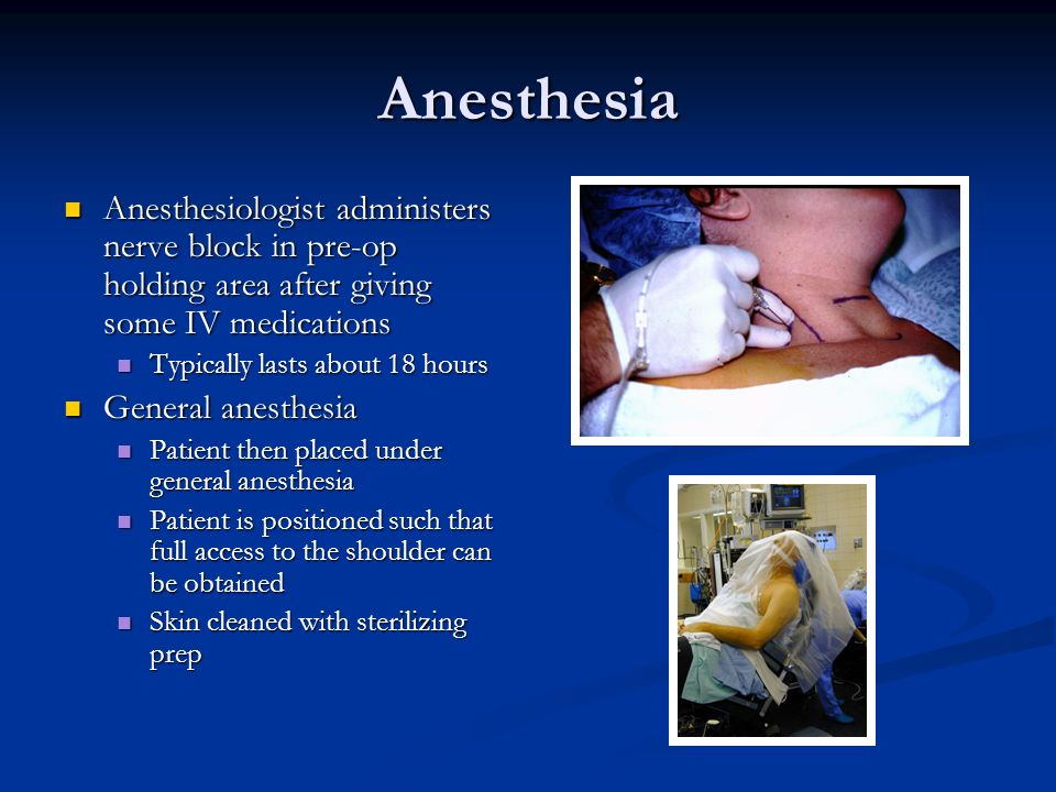 Anesthesia Anesthesiologist administers nerve block in pre-op holding area after giving some IV medications Anesthesiologist administers nerve block i