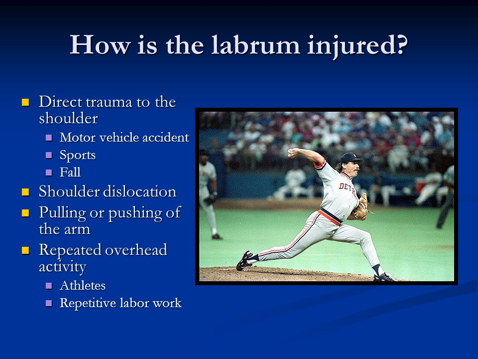 How is the labrum injured? Direct trauma to the shoulder Direct trauma to the shoulder Motor vehicle accident Motor vehicle accident Sports Sports Fal