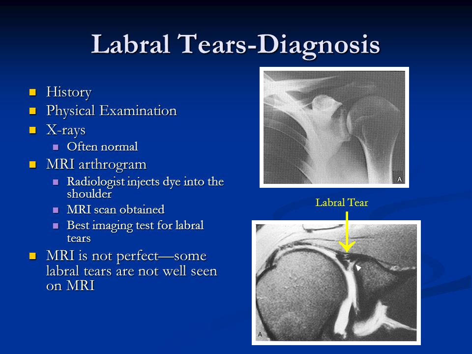 Labral Tears-Diagnosis History History Physical Examination Physical Examination X-rays X-rays Often normal Often normal MRI arthrogram MRI arthrogram