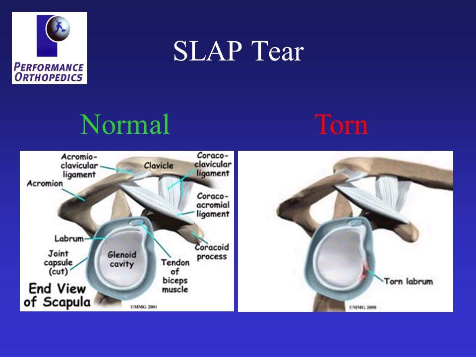 SLAP Tear NormalTorn