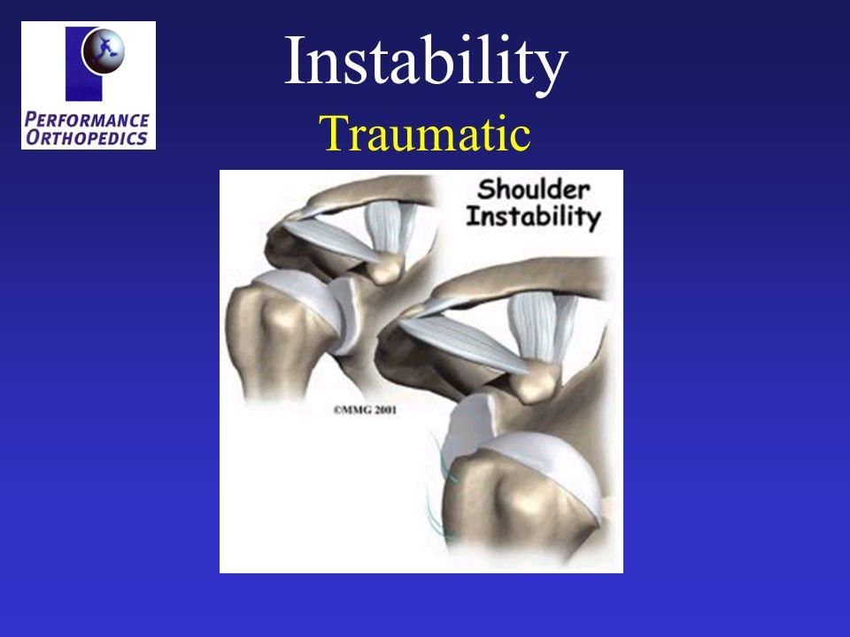 Instability Traumatic