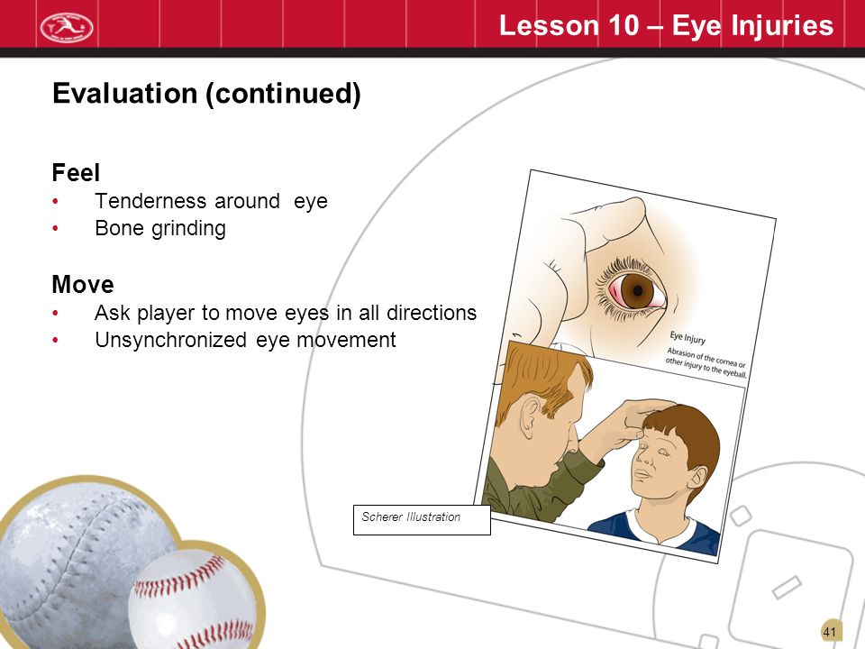 41 Lesson 10 – Eye Injuries Feel Tenderness around eye Bone grinding Move Ask player to move eyes in all directions Unsynchronized eye movement Evalua