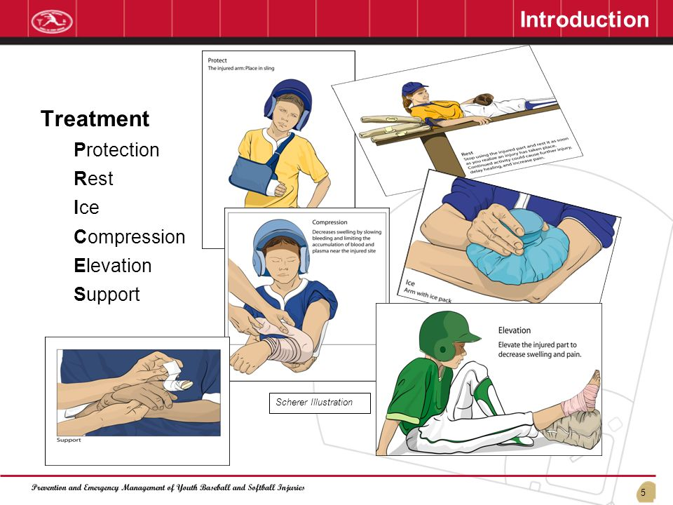 5 Introduction Treatment Protection Rest Ice Compression Elevation Support Scherer Illustration