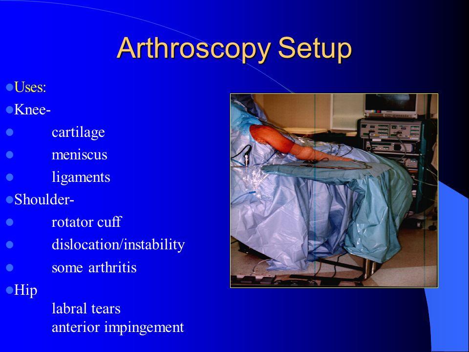 Arthroscopy Setup Uses: Knee- cartilage meniscus ligaments Shoulder- rotator cuff dislocation/instability some arthritis Hip labral tears anterior imp