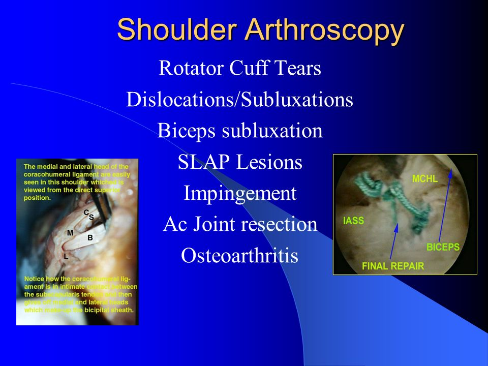 Shoulder Arthroscopy Shoulder Arthroscopy Rotator Cuff Tears Dislocations/Subluxations Biceps subluxation SLAP Lesions Impingement Ac Joint resection