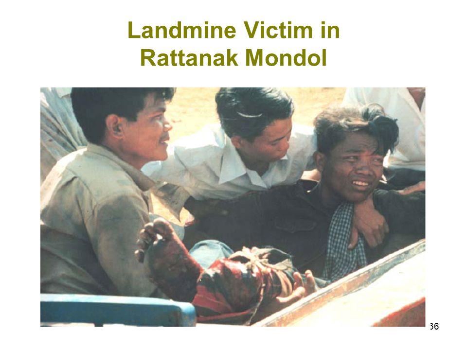 36 Landmine Victim in Rattanak Mondol
