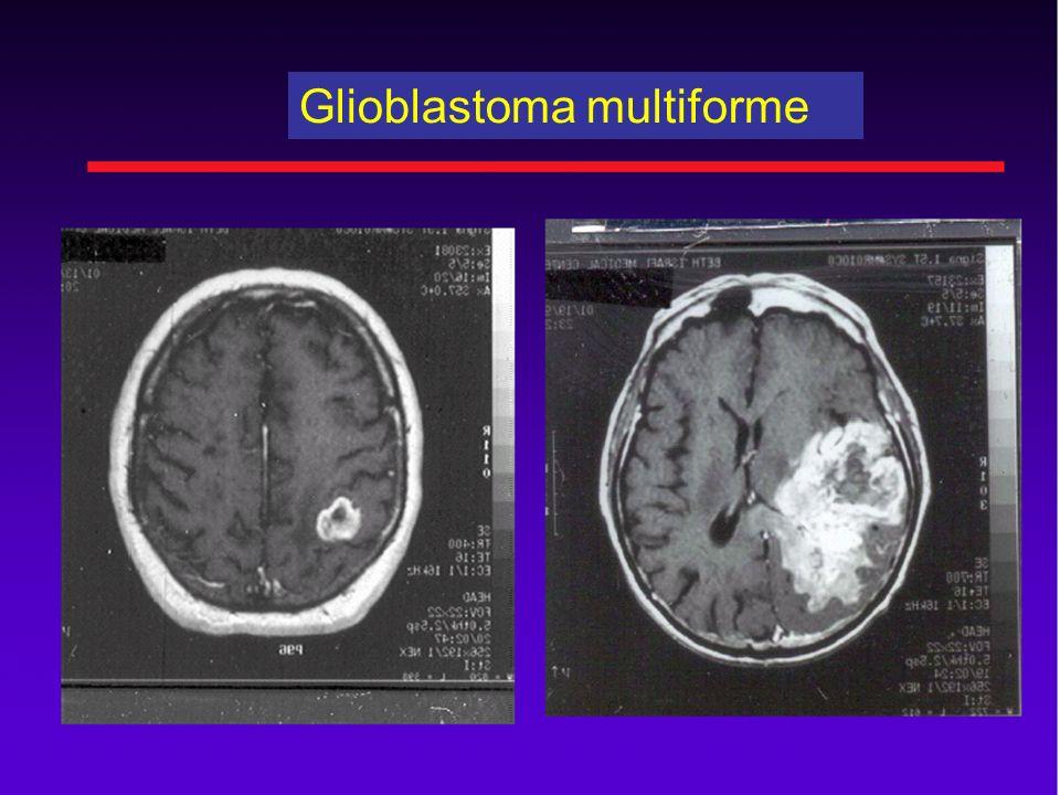 Boron Neutron Capture Therapy Glioblastoma: the invasive nature makes treatment difficult.