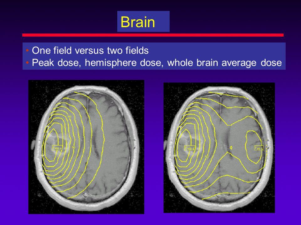 Brain One field versus two fields Peak dose, hemisphere dose, whole brain average dose