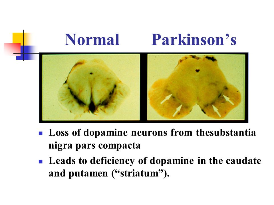 Normal Parkinsons Loss of dopamine neurons from thesubstantia nigra pars compacta Leads to deficiency of dopamine in the caudate and putamen (striatum