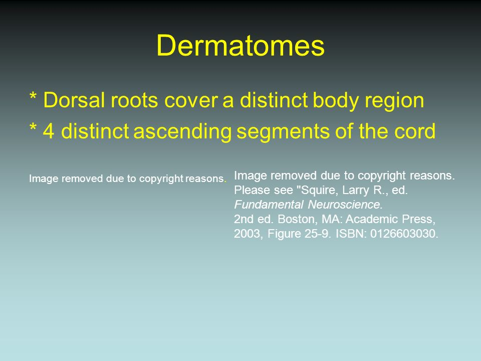 Dermatomes * Dorsal roots cover a distinct body region * 4 distinct ascending segments of the cord Image removed due to copyright reasons. Please see