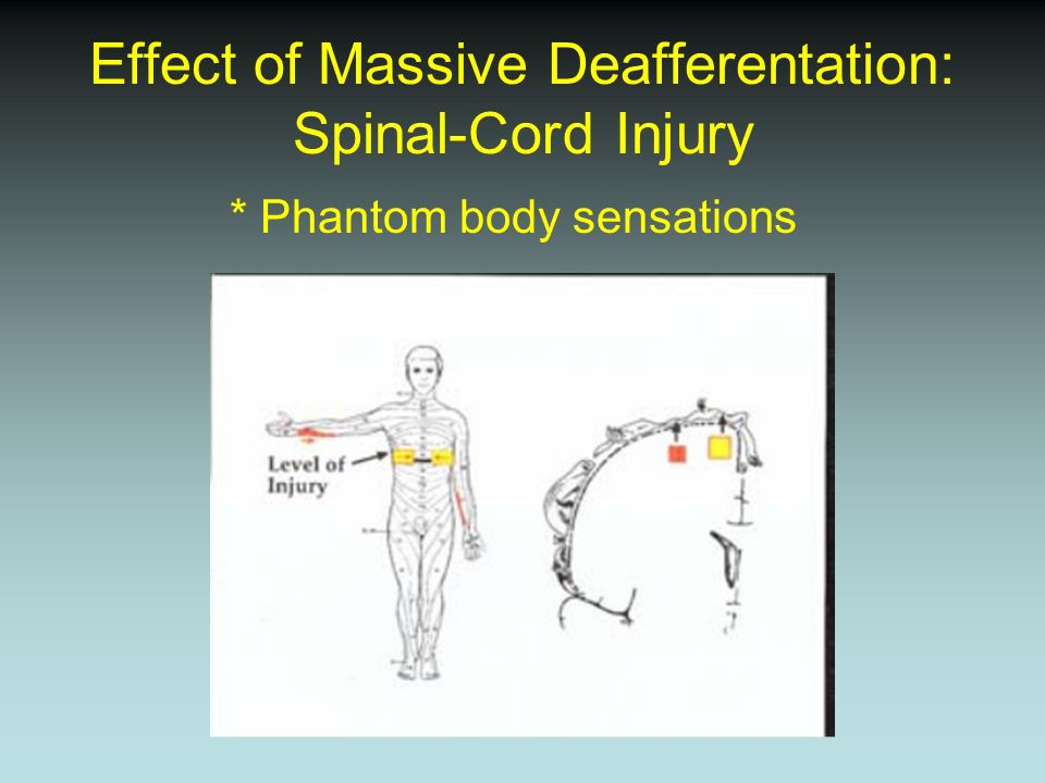 Effect of Massive Deafferentation: Spinal-Cord Injury * Phantom body sensations
