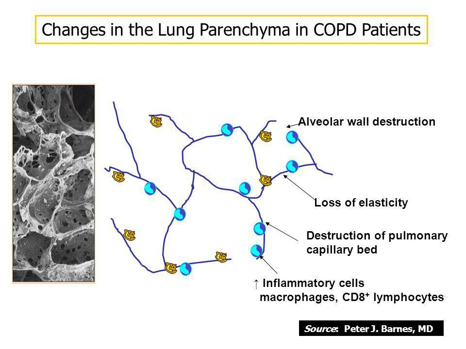 Alveolar wall destruction Loss of elasticity Destruction of pulmonary capillary bed Inflammatory cells macrophages, CD8 + lymphocytes Changes in the L