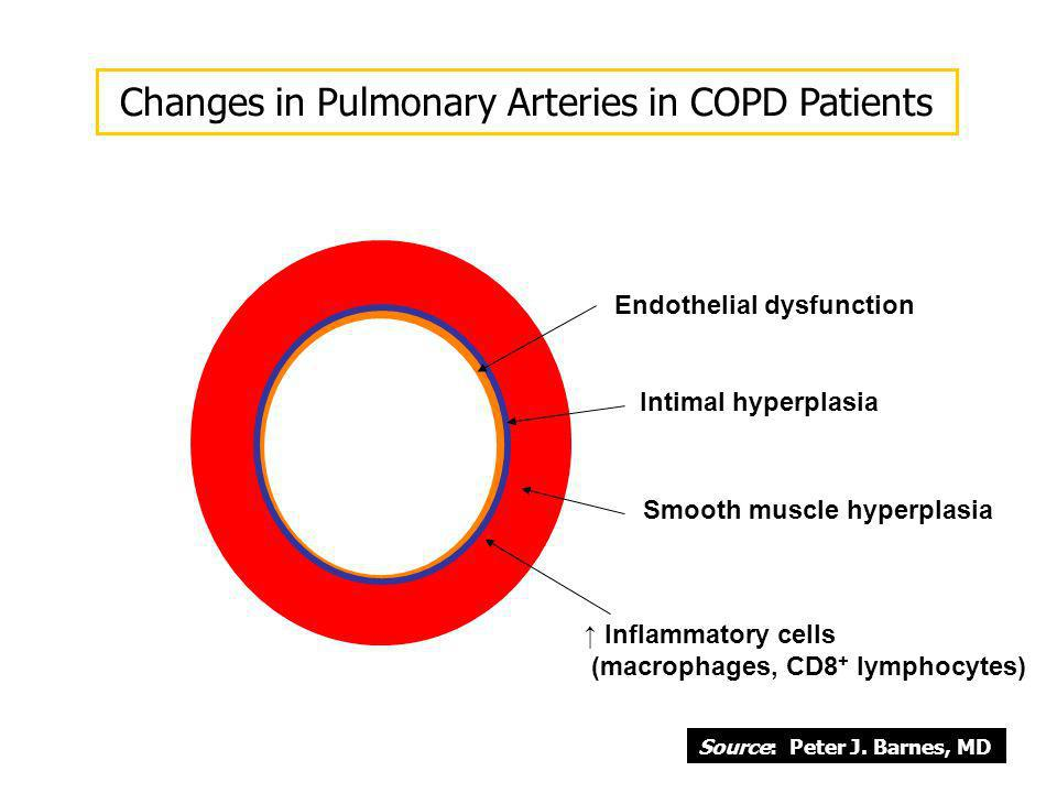 Endothelial dysfunction Intimal hyperplasia Smooth muscle hyperplasia Inflammatory cells (macrophages, CD8 + lymphocytes) Changes in Pulmonary Arterie