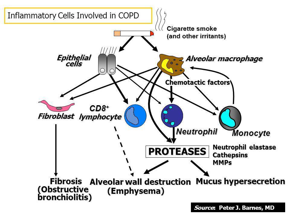Cigarette smoke (and other irritants) PROTEASES PROTEASES Neutrophil elastase CathepsinsMMPs Alveolar wall destruction (Emphysema) Mucus hypersecretio