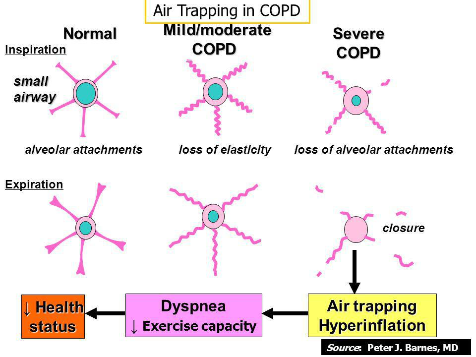 Normal Inspiration Expiration alveolar attachments Mild/moderate COPD loss of elasticity Severe COPD loss of alveolar attachments closure smallairway