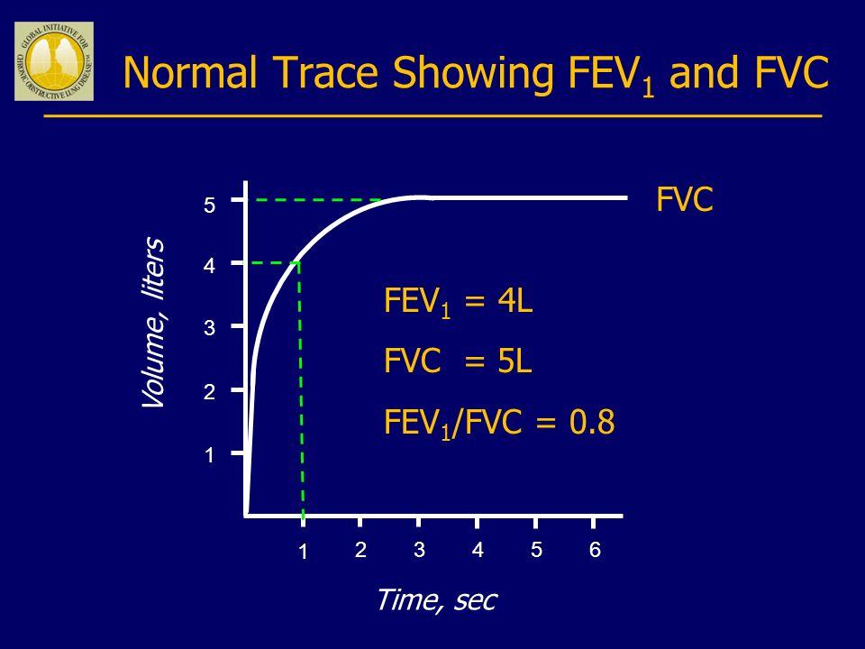 Normal Trace Showing FEV 1 and FVC 123456 1 2 3 4 Volume, liters Time, sec FVC 5 1 FEV 1 = 4L FVC = 5L FEV 1 /FVC = 0.8
