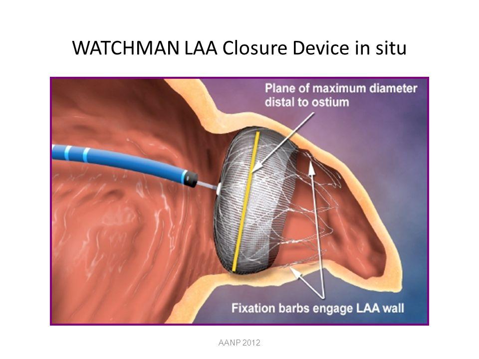 WATCHMAN LAA Closure Device in situ AANP 2012