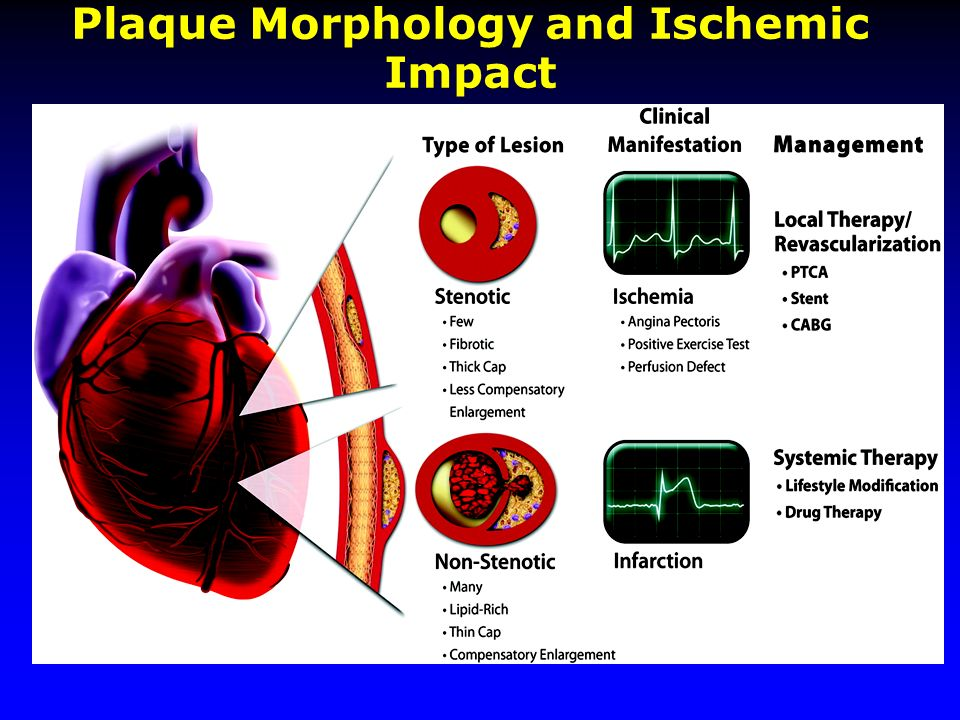 Libby, P. et al. Circulation 2005;111:3481-3488 Plaque Morphology and Ischemic Impact