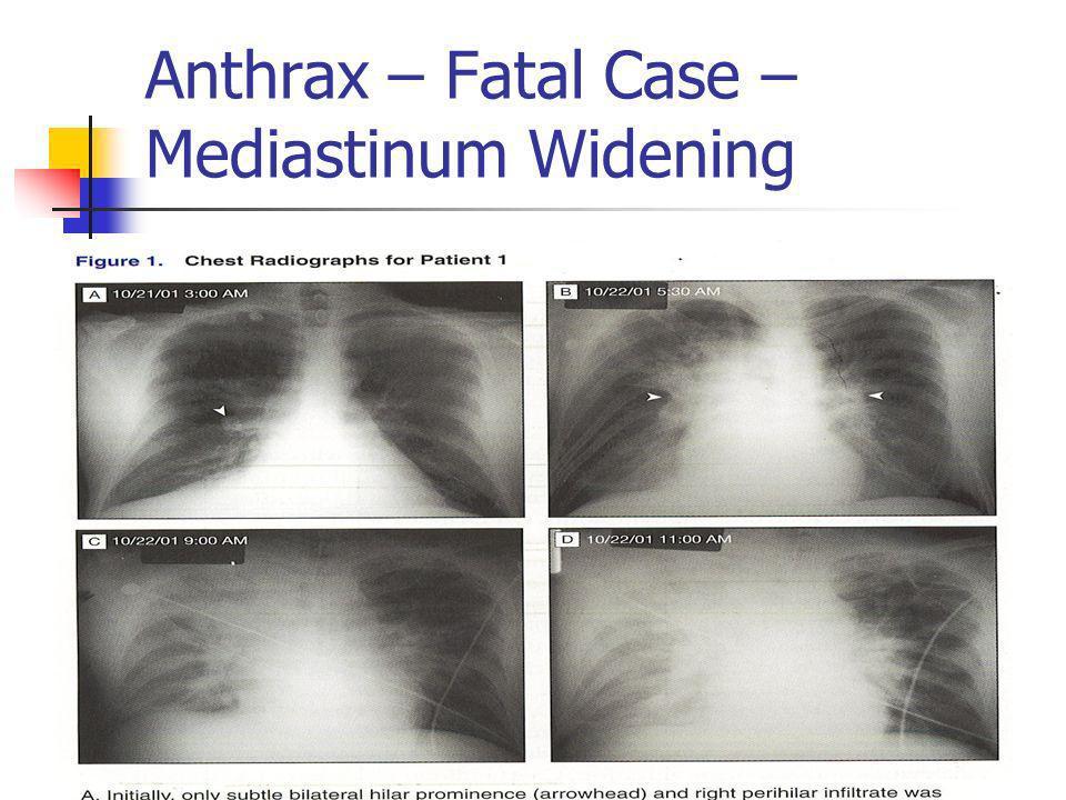 Anthrax – Fatal Case – Mediastinum Widening