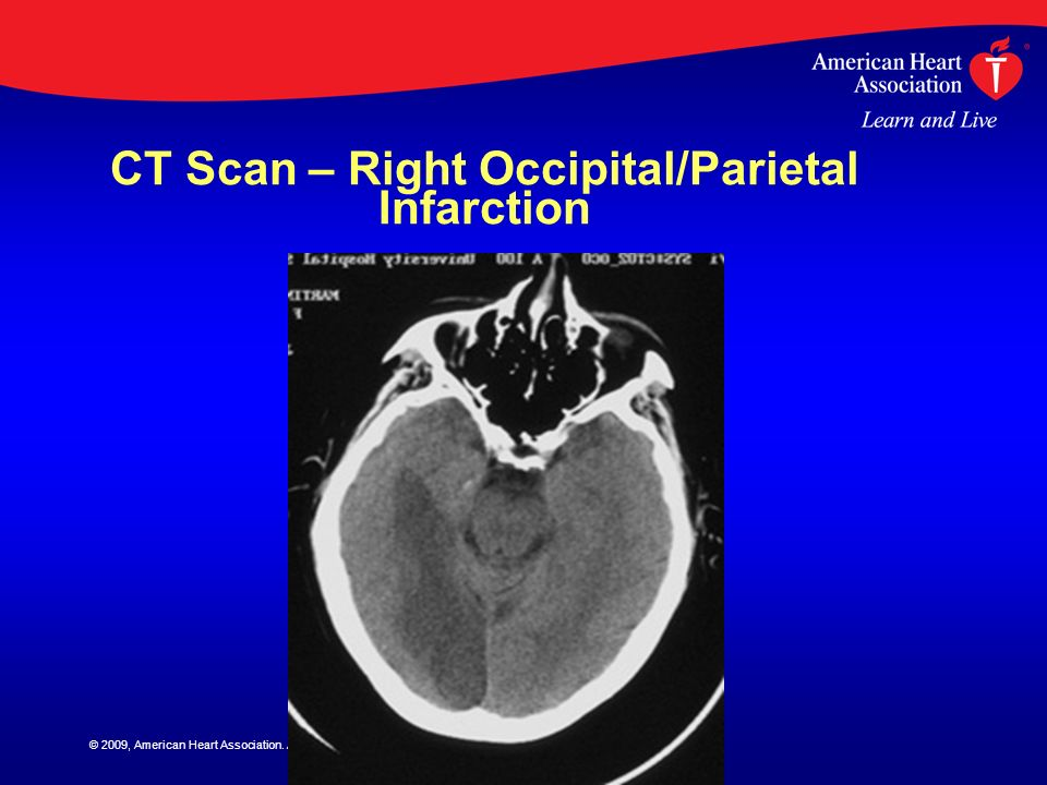 © 2009, American Heart Association. All rights reserved. CT Scan – Right Occipital/Parietal Infarction