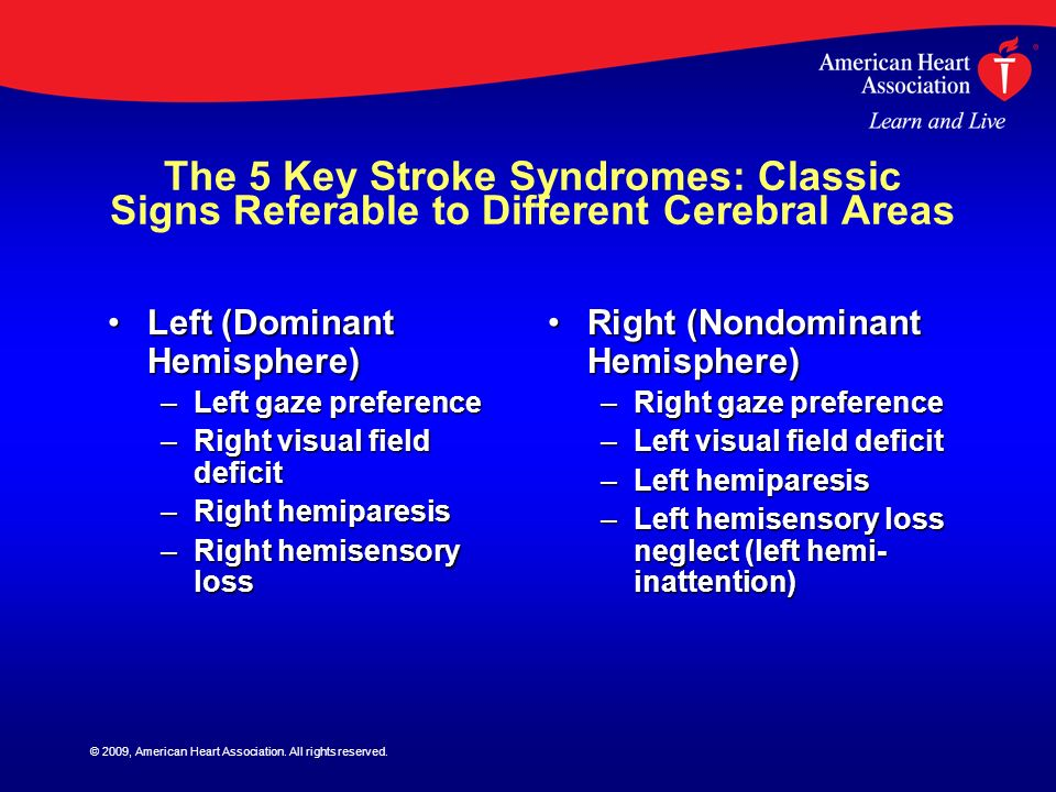 © 2009, American Heart Association. All rights reserved. The 5 Key Stroke Syndromes: Classic Signs Referable to Different Cerebral Areas Left (Dominan
