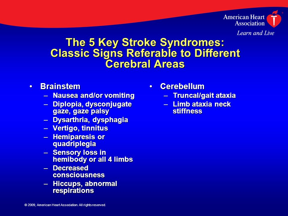 © 2009, American Heart Association. All rights reserved. The 5 Key Stroke Syndromes: Classic Signs Referable to Different Cerebral Areas BrainstemBrai