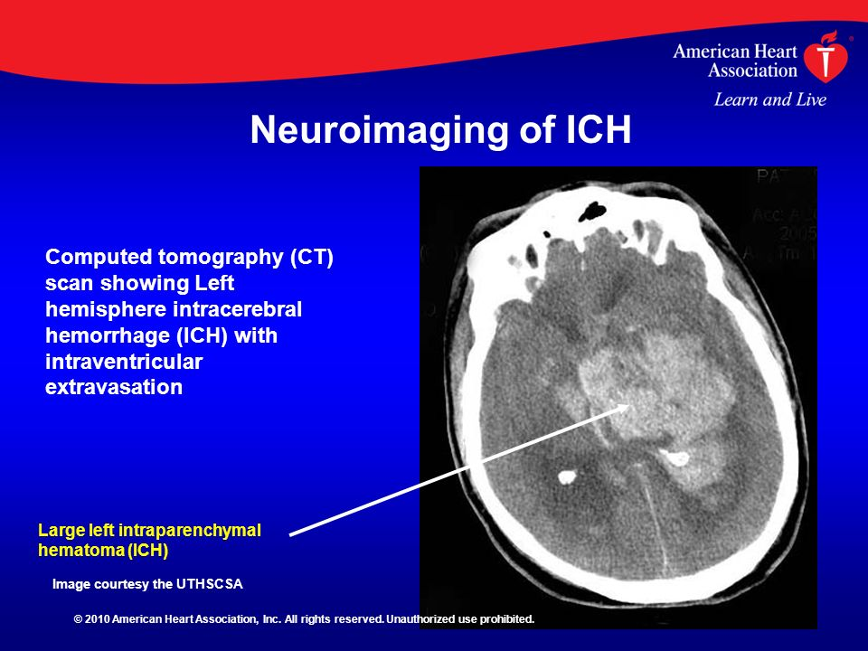 Large left intraparenchymal hematoma (ICH) Computed tomography (CT) scan showing Left hemisphere intracerebral hemorrhage (ICH) with intraventricular