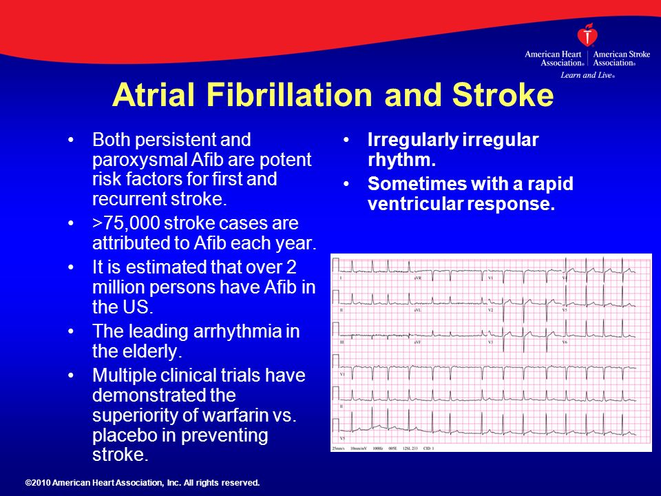 Atrial Fibrillation and Stroke Both persistent and paroxysmal Afib are potent risk factors for first and recurrent stroke. >75,000 stroke cases are at