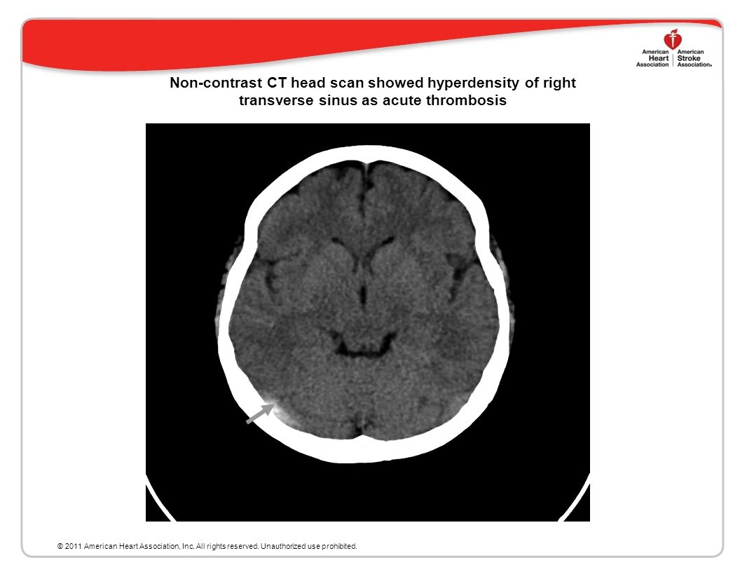 Imaging in the Diagnosis of CV T CT is widely used as the initial imaging test in patients presenting with new onset neurological symptoms CT without