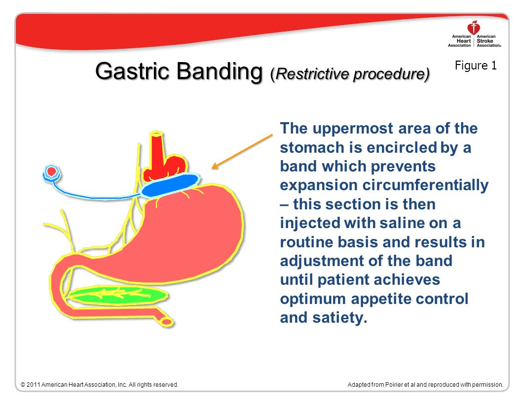 Bariatric Surgical Procedures Adapted from Poirier et al.