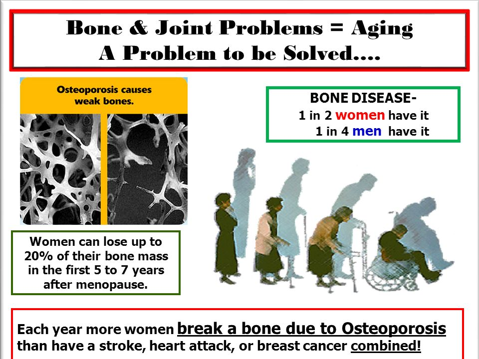 Bone & Joint Problems = Aging A Problem to be Solved…. Each year more women break a bone due to Osteoporosis than have a stroke, heart attack, or brea