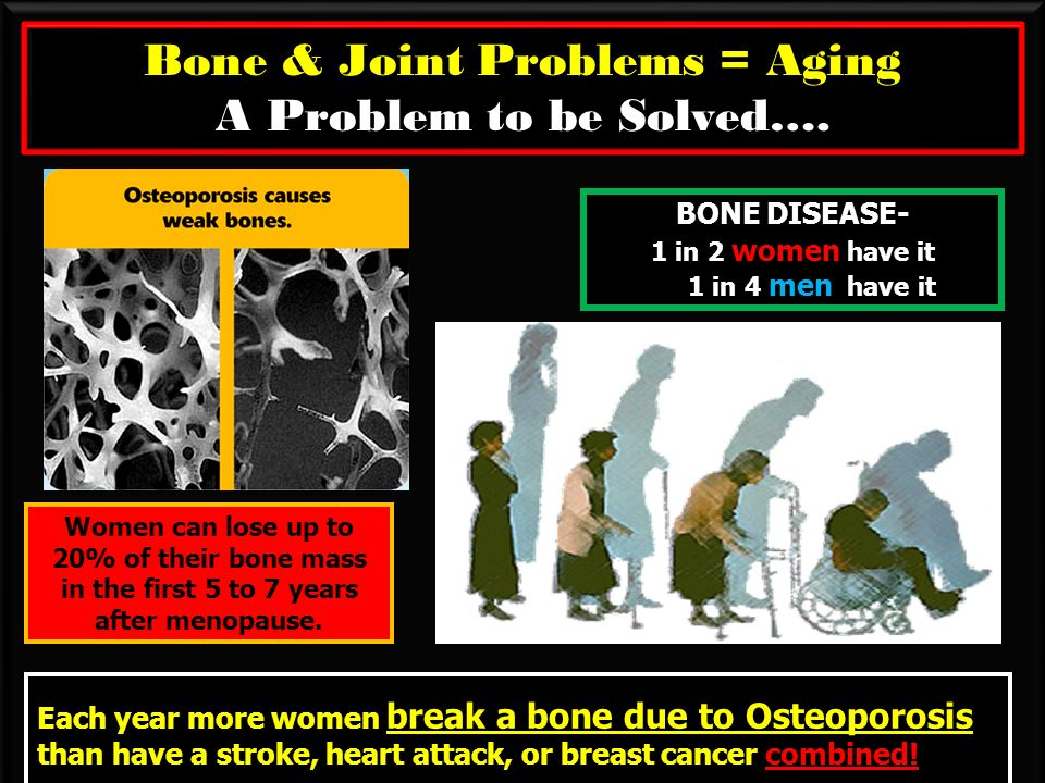 Bone & Joint Problems = Aging A Problem to be Solved….