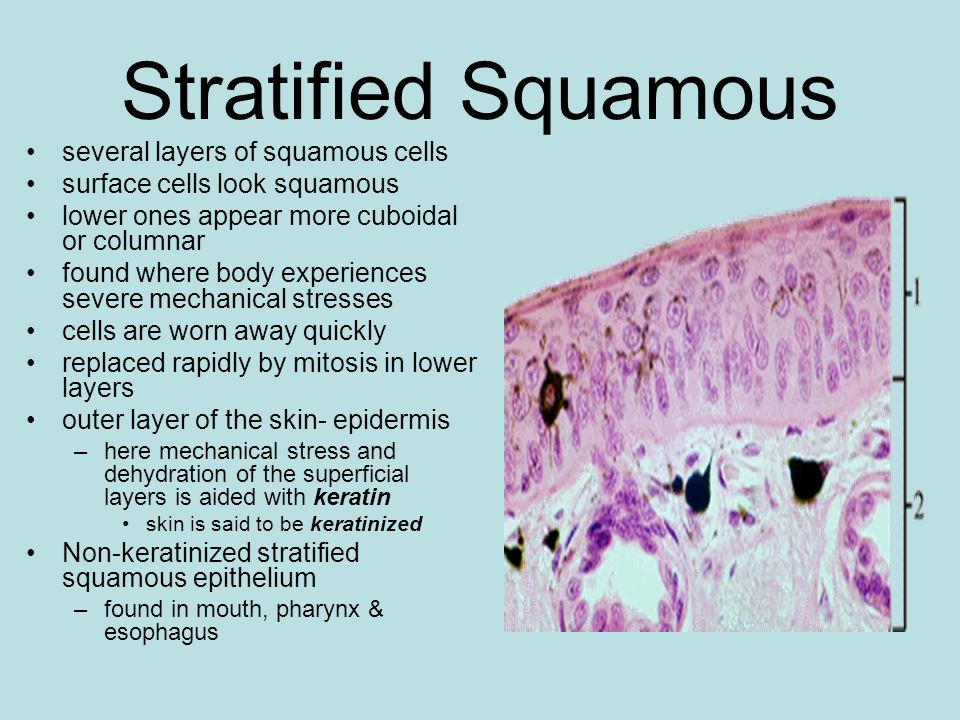 Stratified Squamous several layers of squamous cells surface cells look squamous lower ones appear more cuboidal or columnar found where body experien
