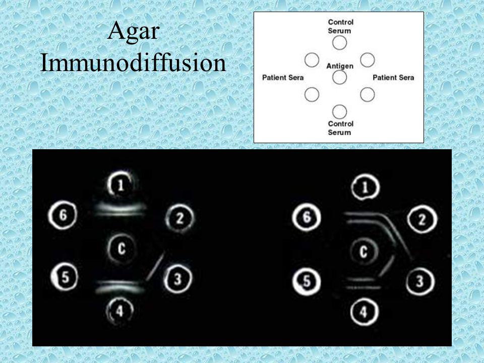 Agar Immunodiffusion