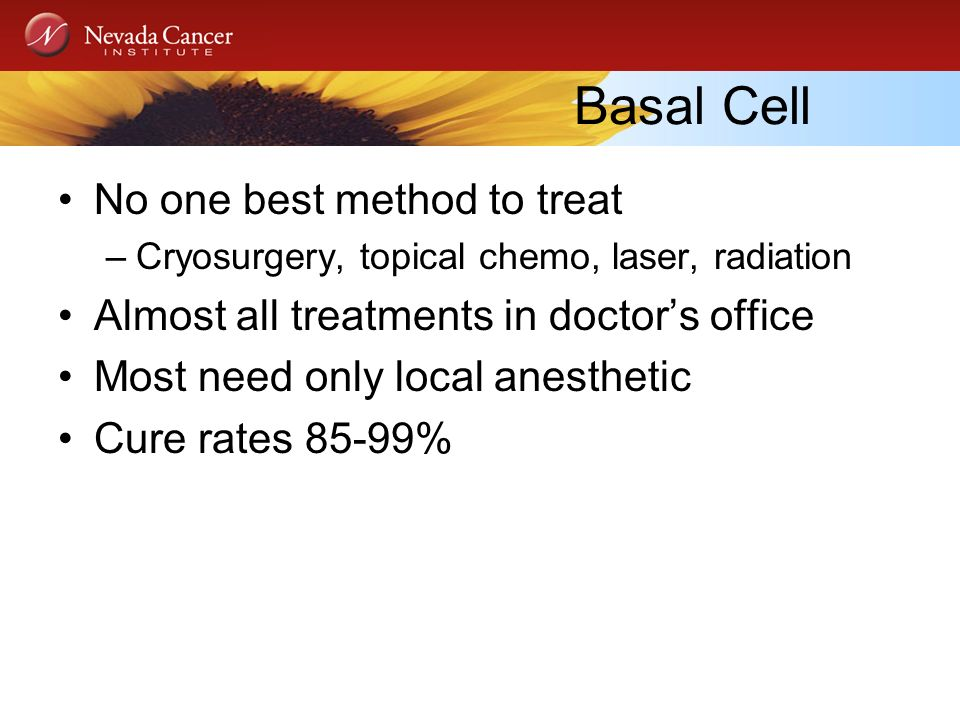 Basal Cell No one best method to treat –Cryosurgery, topical chemo, laser, radiation Almost all treatments in doctors office Most need only local anes