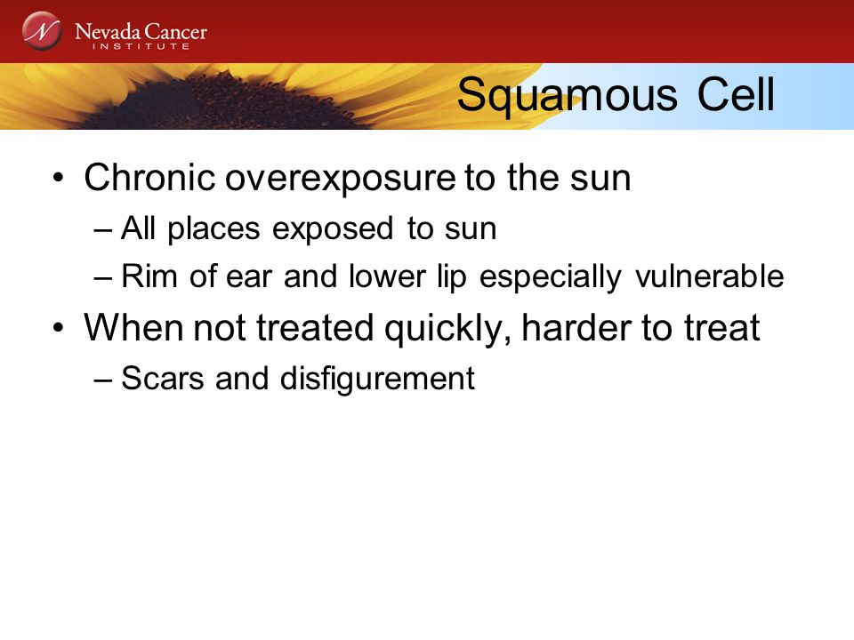 Squamous Cell Chronic overexposure to the sun –All places exposed to sun –Rim of ear and lower lip especially vulnerable When not treated quickly, harder to treat –Scars and disfigurement