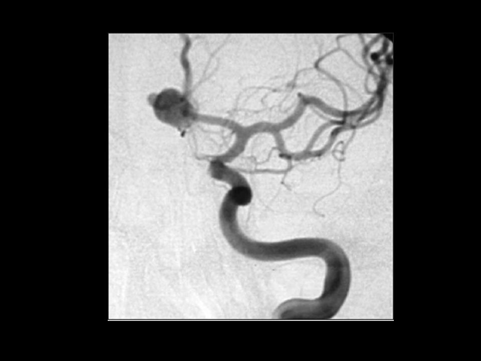 Subarachnoid haemorrhage Clear evidence for superiority of non- surgical management in majority of cases (coiling not clipping) Multidisciplinary approach to management likely to be most successful
