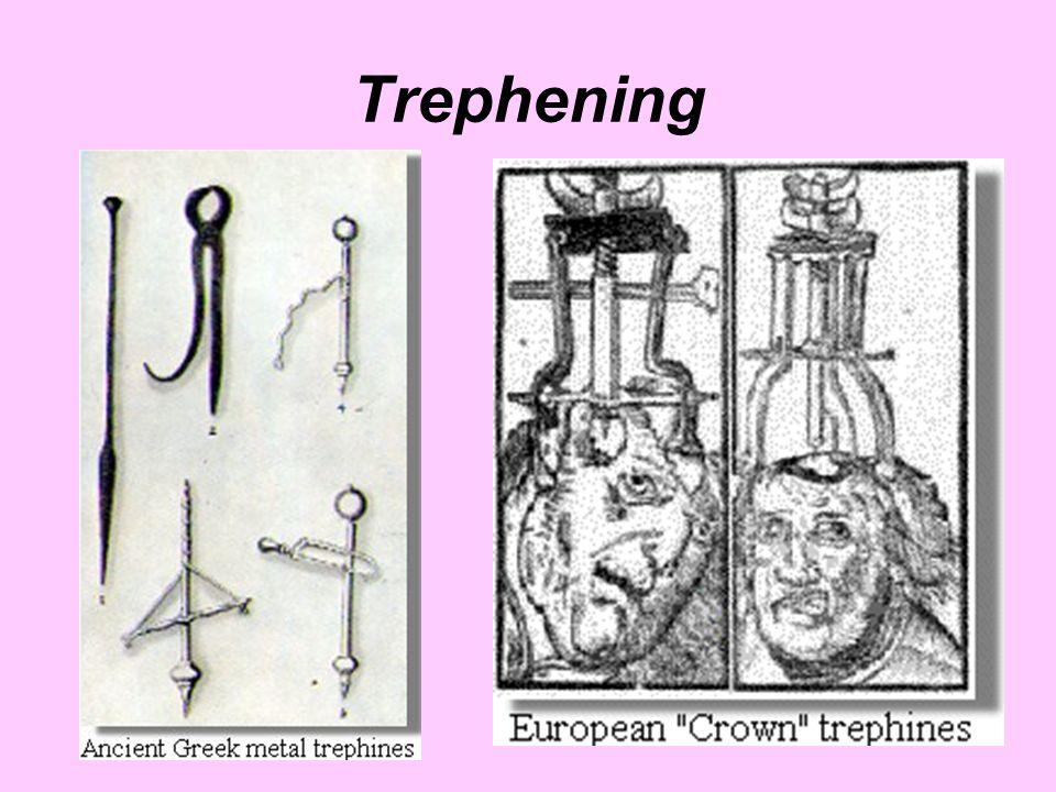 Trephening