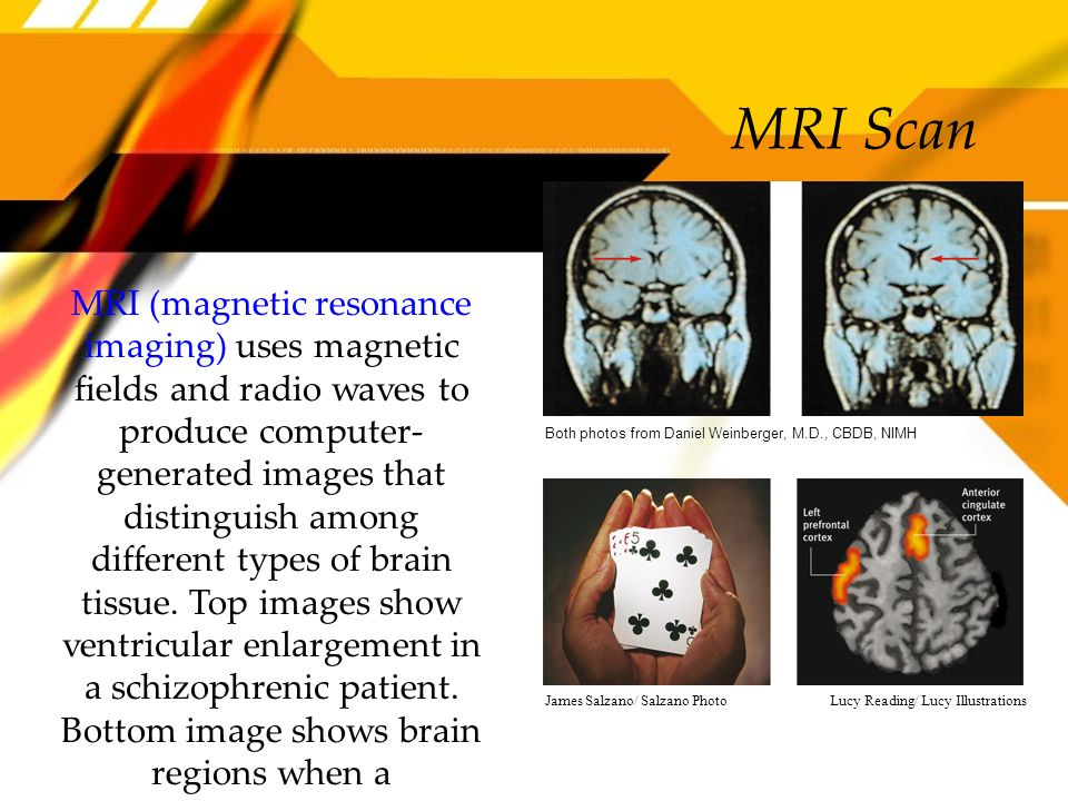 MRI Scan MRI (magnetic resonance imaging) uses magnetic fields and radio waves to produce computer- generated images that distinguish among different