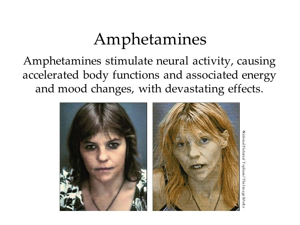 Amphetamines Amphetamines stimulate neural activity, causing accelerated body functions and associated energy and mood changes, with devastating effec