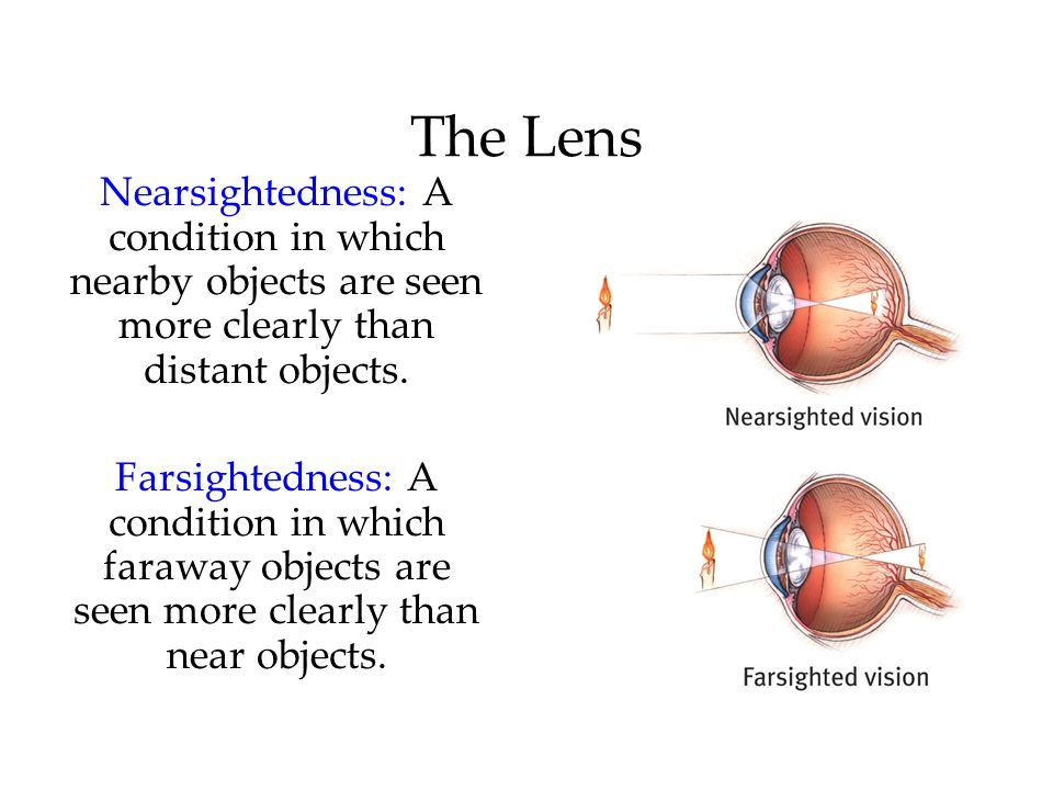 The Lens Nearsightedness: A condition in which nearby objects are seen more clearly than distant objects. Farsightedness: A condition in which faraway