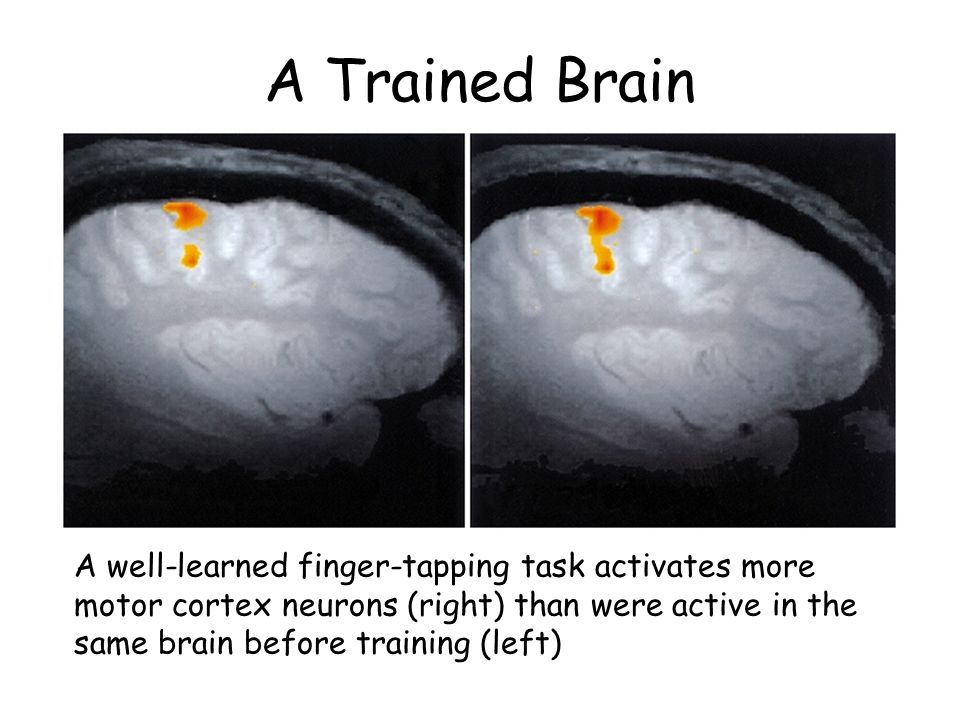 A Trained Brain A well-learned finger-tapping task activates more motor cortex neurons (right) than were active in the same brain before training (lef