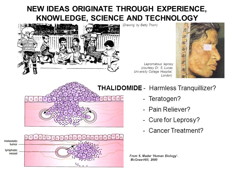 NEW IDEAS ORIGINATE THROUGH EXPERIENCE, KNOWLEDGE, SCIENCE AND TECHNOLOGY (Drawing by Betty Thorn) THALIDOMIDE - Harmless Tranquillizer.