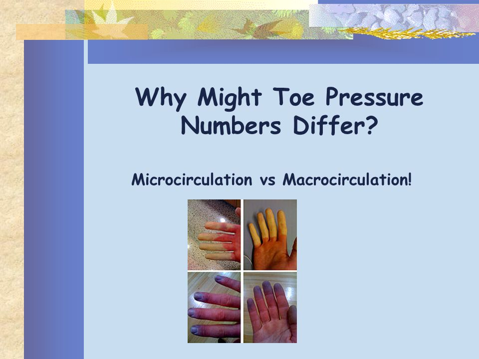 Why Might Toe Pressure Numbers Differ? Microcirculation vs Macrocirculation!