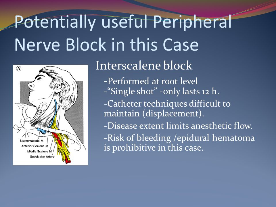 Potentially useful Peripheral Nerve Block in this Case Interscalene block - Performed at root level -Single shot -only lasts 12 h.
