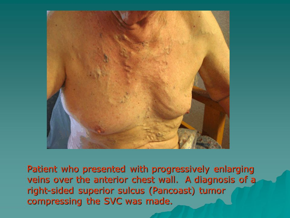 Patient who presented with progressively enlarging veins over the anterior chest wall. A diagnosis of a right-sided superior sulcus (Pancoast) tumor c