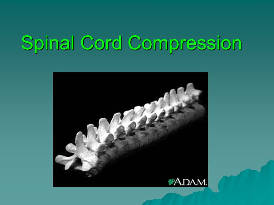 Spinal Cord Compression