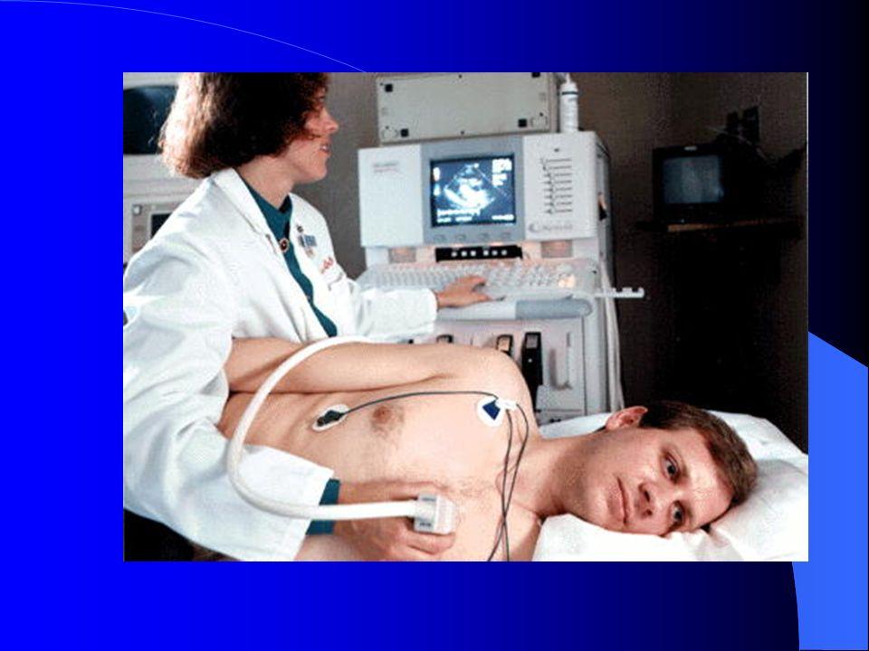 Prognostication NYHA Class1 Year Mortality I5-10% II-III15-30% IV50-60%