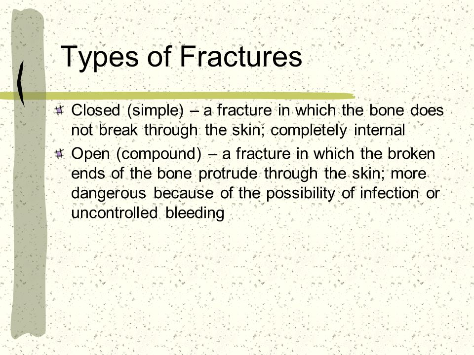 Types of Fractures Closed (simple) – a fracture in which the bone does not break through the skin; completely internal Open (compound) – a fracture in which the broken ends of the bone protrude through the skin; more dangerous because of the possibility of infection or uncontrolled bleeding