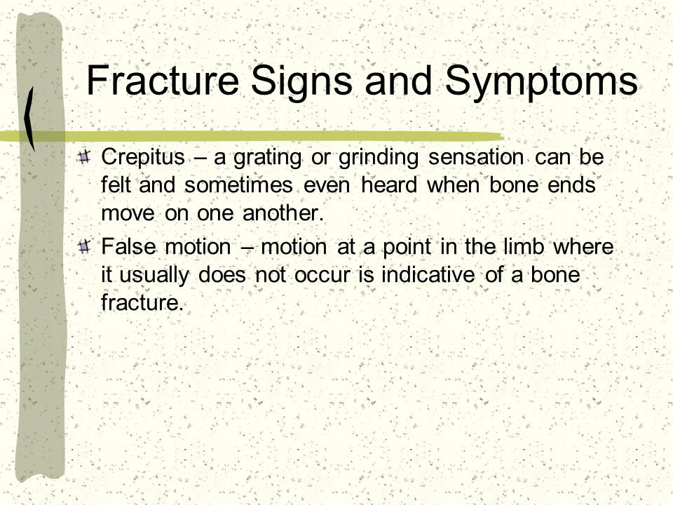 Fracture Signs and Symptoms Crepitus – a grating or grinding sensation can be felt and sometimes even heard when bone ends move on one another.